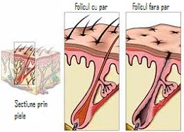 Tratament calvitie barbati