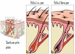 motive si tratament pentru calvirie-cadere par la barbati si cancer de prostata