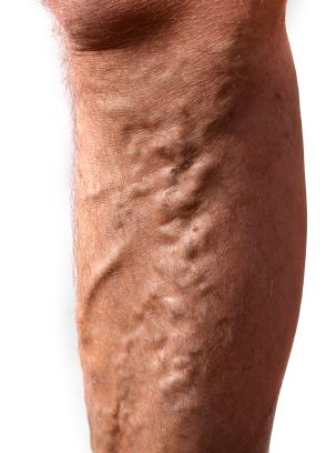 picioare cu varice